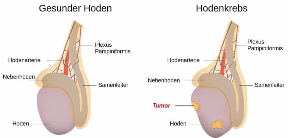 Diagnose Hodenkrebs: Was bedeutet das und wie gefährlich ist der Krebs? 1