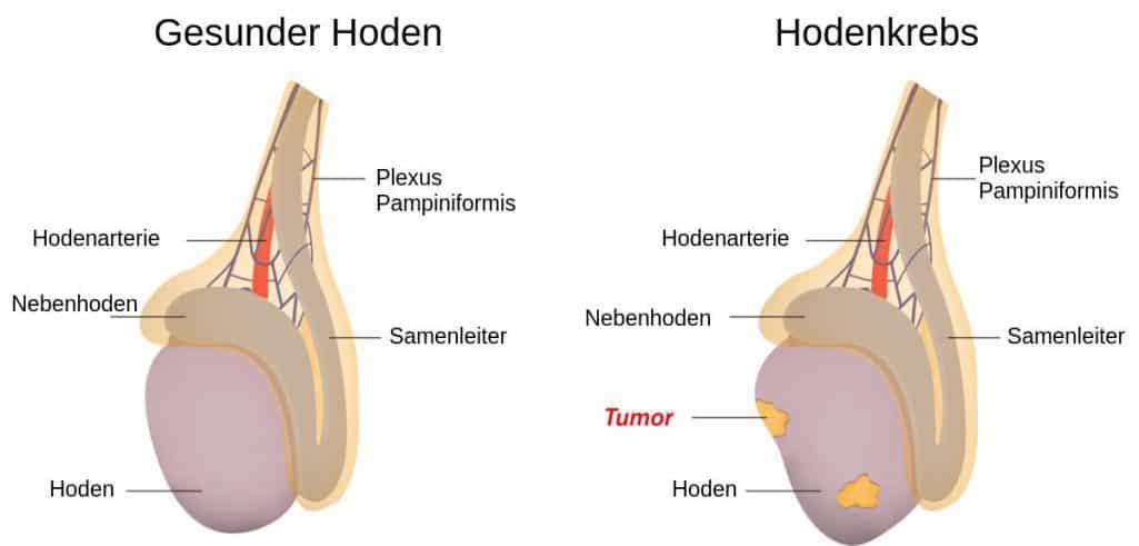 Hodenkrebs