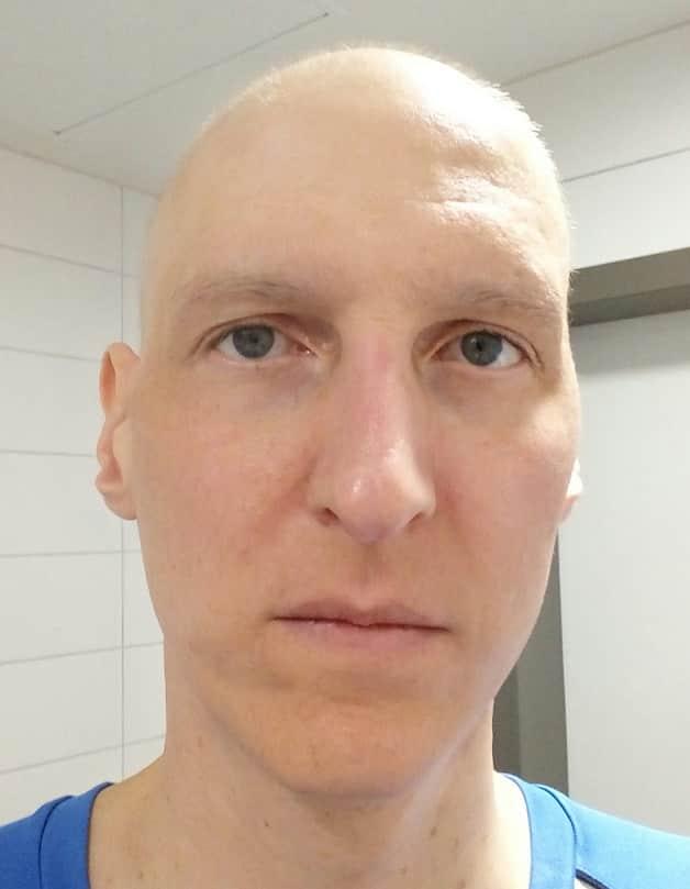 Wann fallen die Haare bei PEB-Chemotherapie aus? Ein Erfahrungsbericht 3