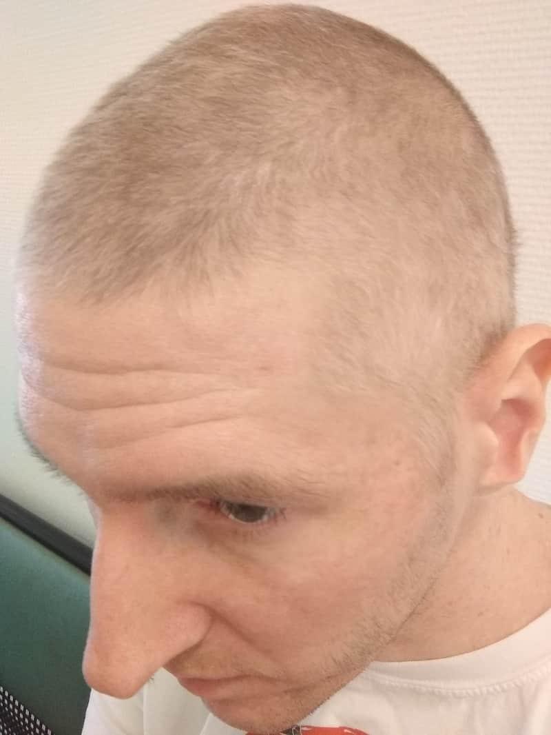 Wann fallen die Haare bei PEB-Chemotherapie aus? Ein Erfahrungsbericht 4