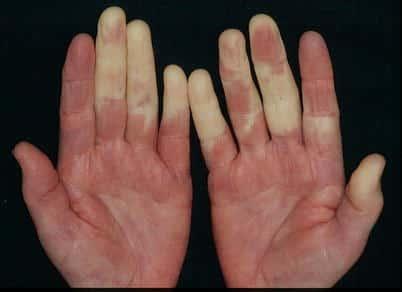 Raynaud Syndrom