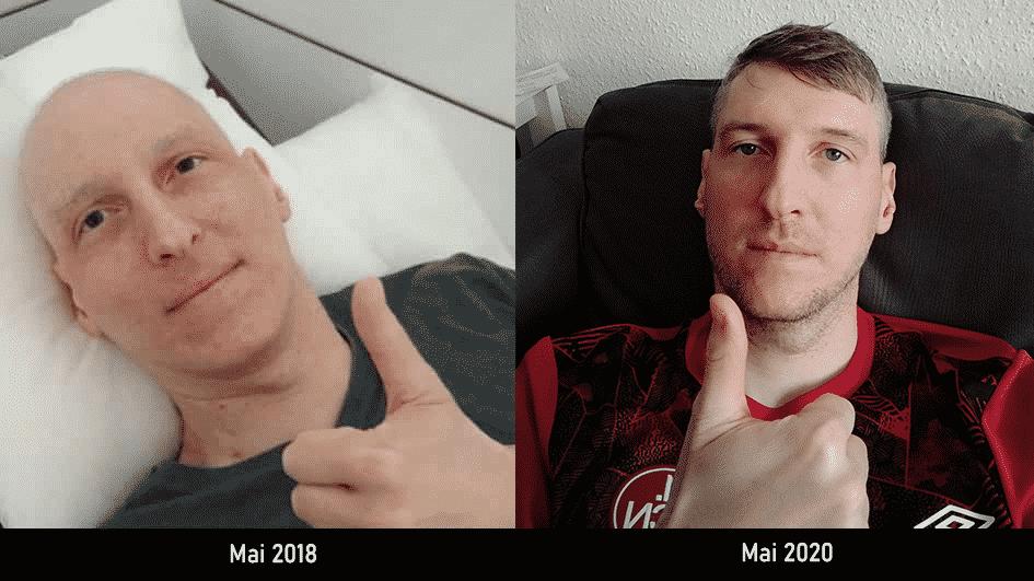 Wie geht es mir zwei Jahre nach meiner Chemotherapie? 1